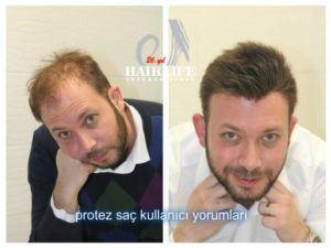 Protez Saç Fiyatı