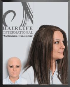 Alopesi hastaları için protez saç