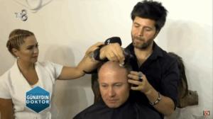 Saç Protezi Kimler İçin Uygundur