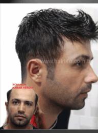 Protez Saç 34
